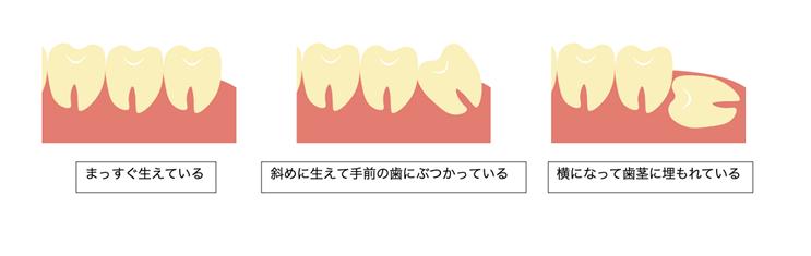 後 歯磨き 抜歯